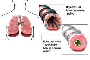 Сужение дыхательной трубки