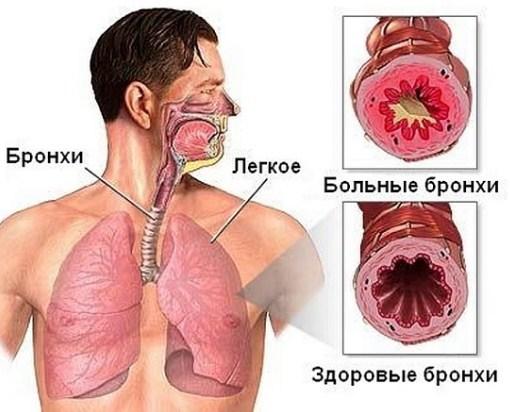 Бронхиальная астма у взрослых: симптомы, признаки и лечение.