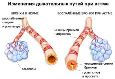 Изменения дыхательных путей